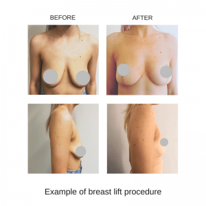 breast lift and augmentation bowral