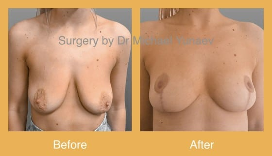 breast lift in sydney