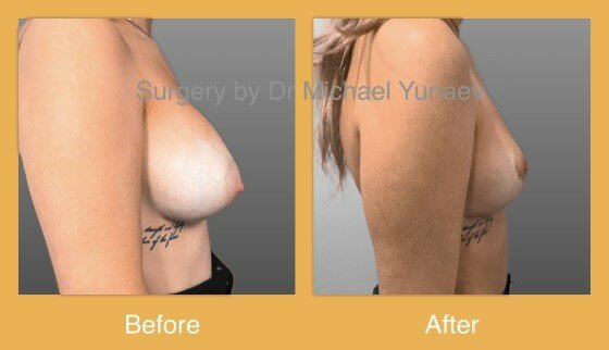 before and after revision surgery