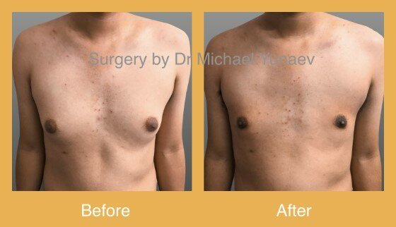 male breast reduction cost