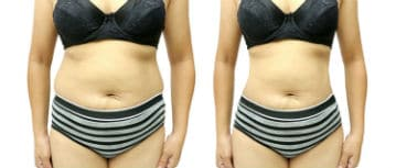 before after result liposuction