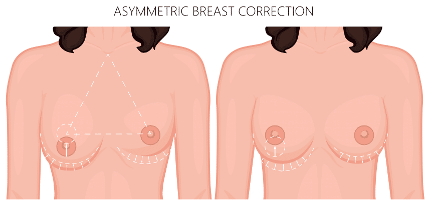 asymmetric breast correction