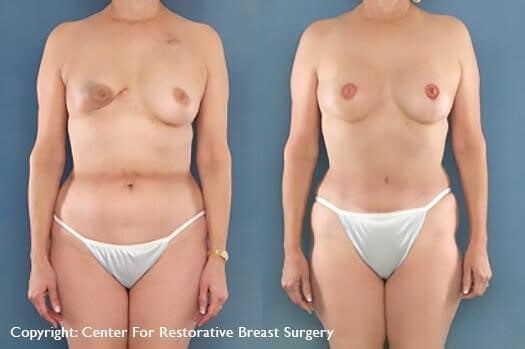 You may be well suited for breast reconstruction if there are no additional medical conditions or illnesses that may impair healing and you have realistic goals for your breast size and shape.