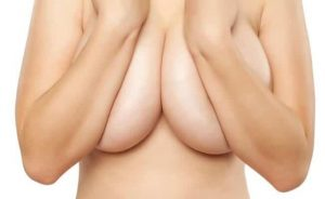 Emma's only regret is that she didn't get breast reduction done sooner