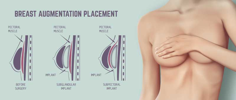 breast-augmentation-implants-sydney