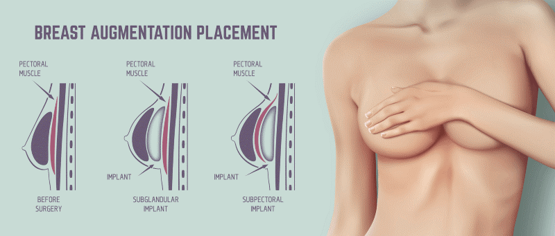 During your consultation, it will be determined which version of the augmentation procedure will be suitable based on your goals.