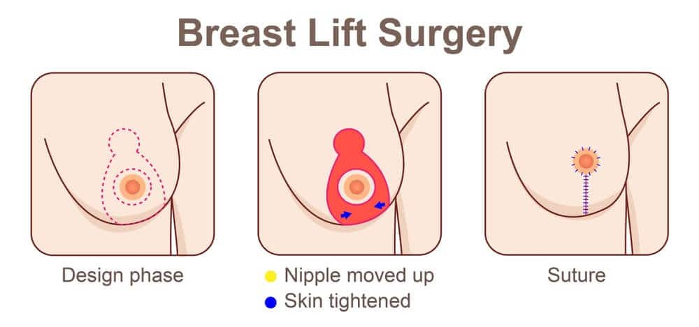 All women will be affected at some point with varying degrees based on the initial size of the breast and the different changes in breast volume and tissue elasticity experienced by the individual.