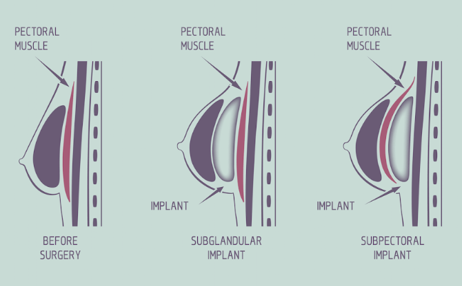 The shape of the implants can be either anatomic (teardrop) or round. This can significantly affect the type of aesthetic breast look that we can achieve.