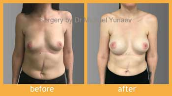 Mild tuberous breast correction with implants Mentor 330cc CPG 322 and round block mastopexy