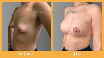 Tuberous breasts implants Mentor 445cc CPG 332 and round block mastopexy and fat grafting
