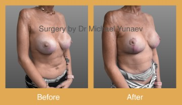 breast implant revision with augmentation