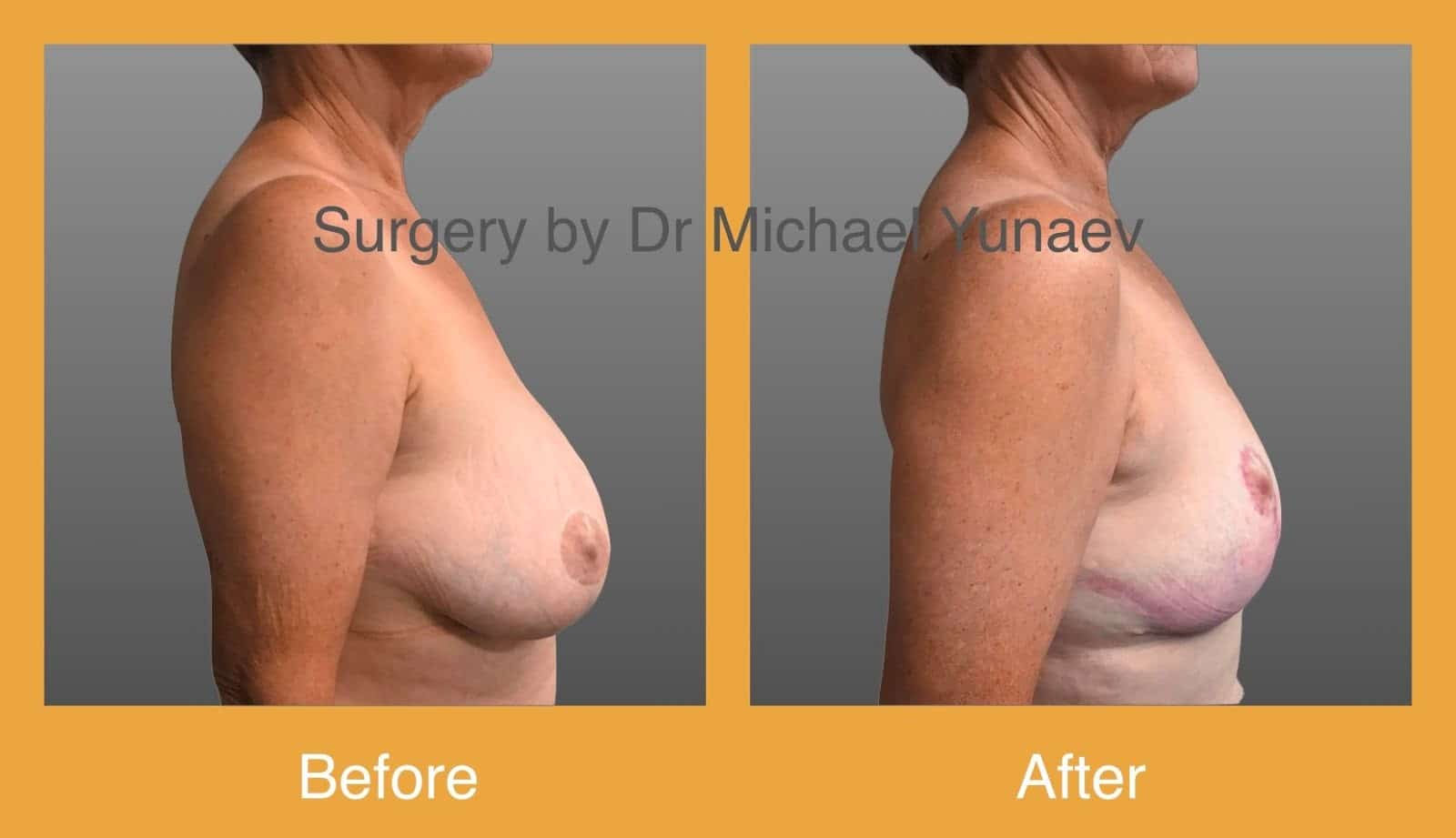 breast reduction surgery sydney before and after