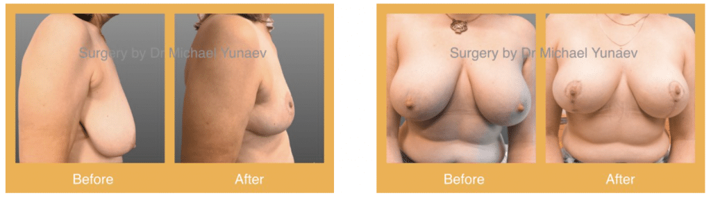 breast reduction in Sydney