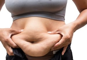 Will a Tummy Tuck Give Me a Smooth and Flat Belly