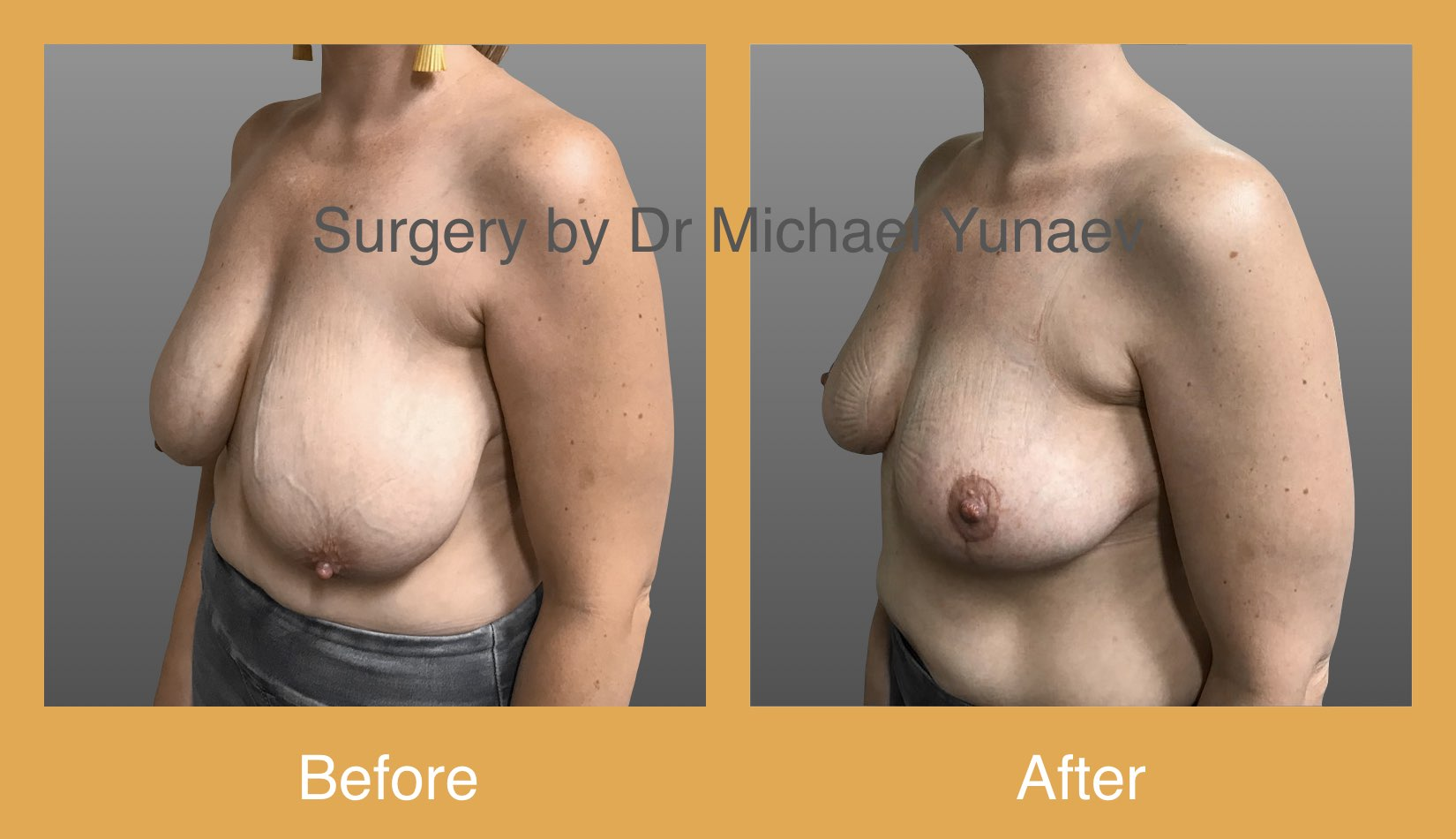 large breast reduction with superomedial pedicle
