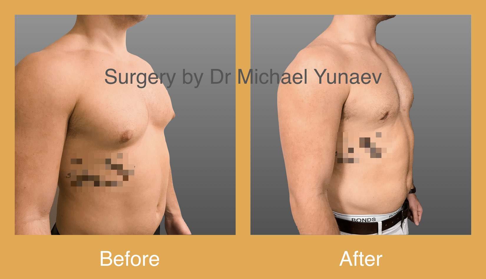 Moderate gynaecomastia treated by liposuction and excision