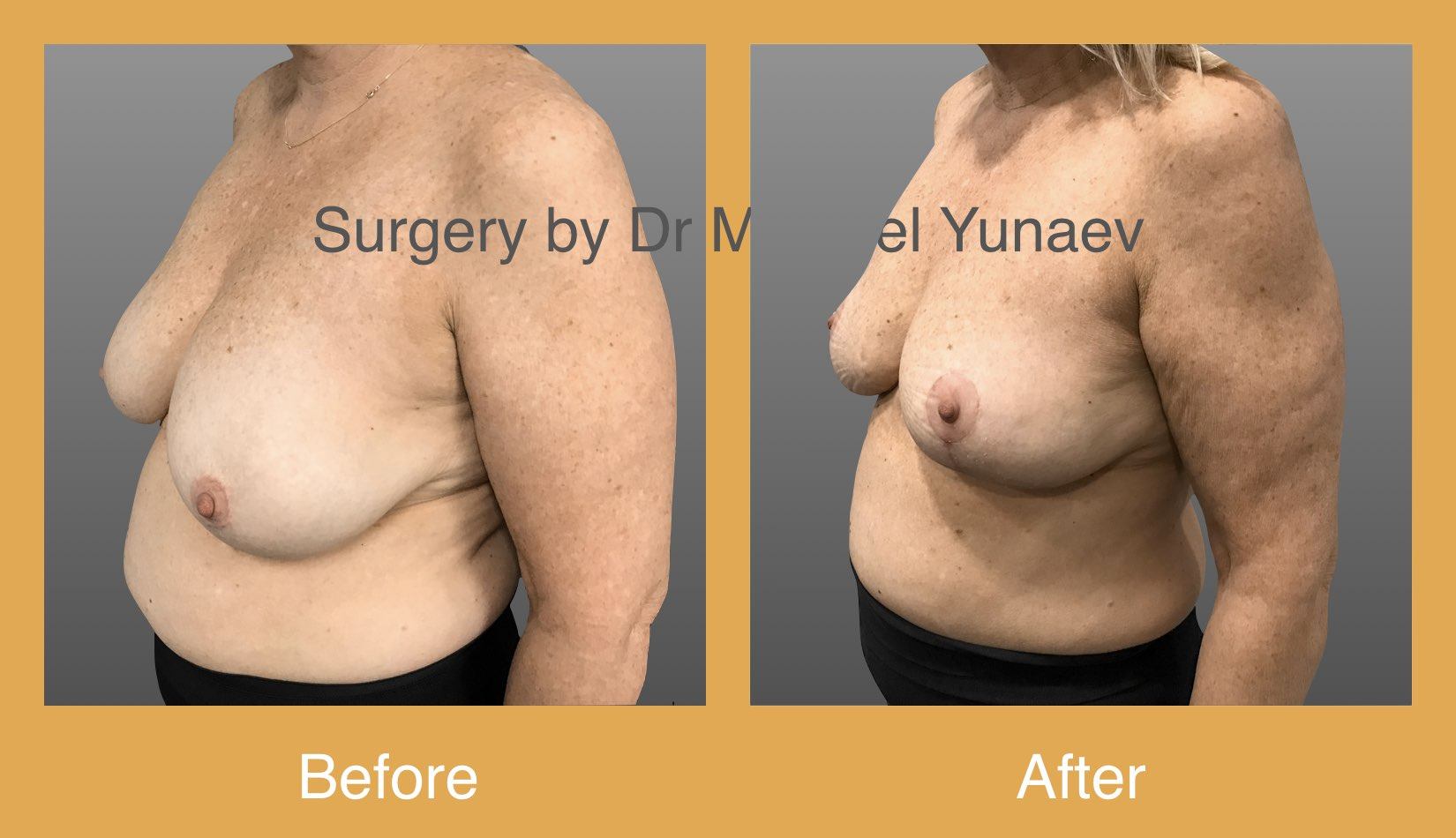 Moderate size SuperoMedial pedicle Breast reduction