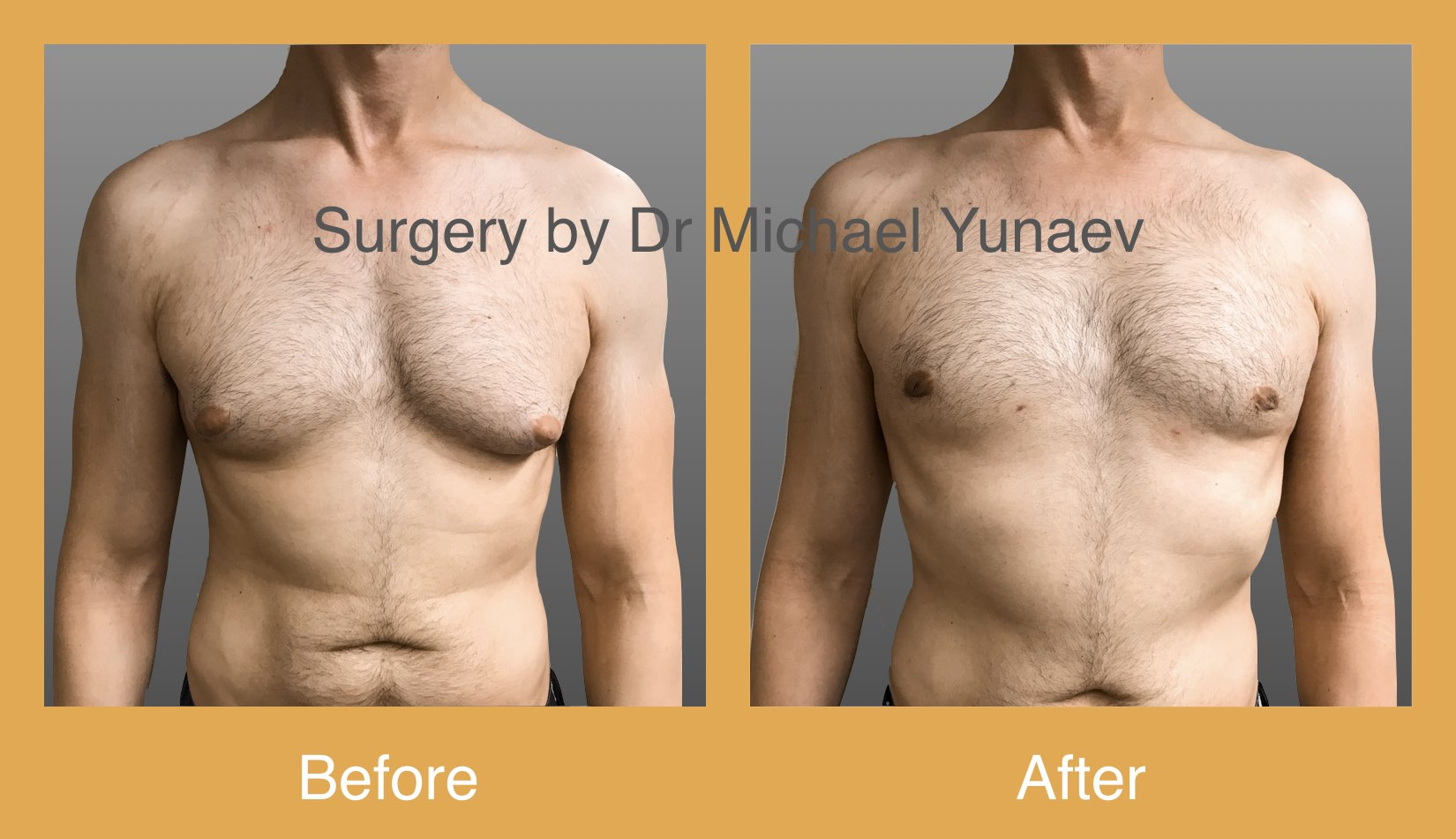 cosmetic breast body surgery central coast