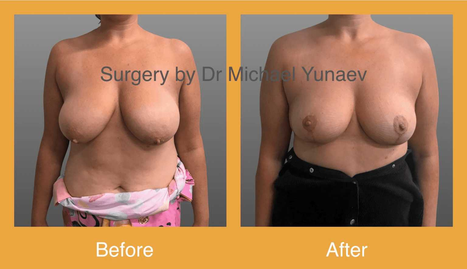 breast lift sydney before and after