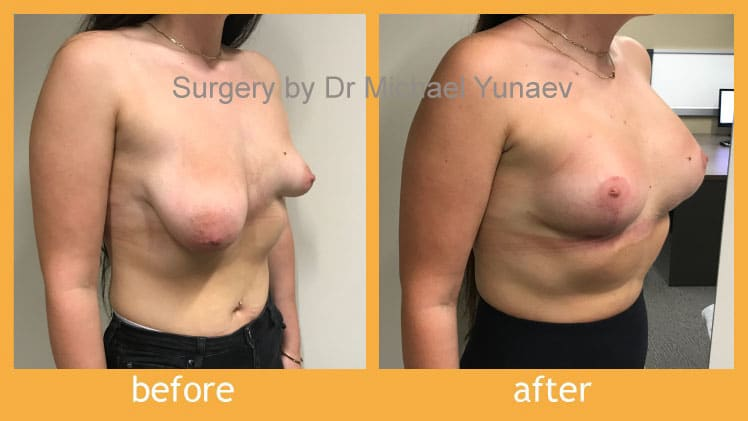 breast-asymmetry-and-tuberous-breast-before-after