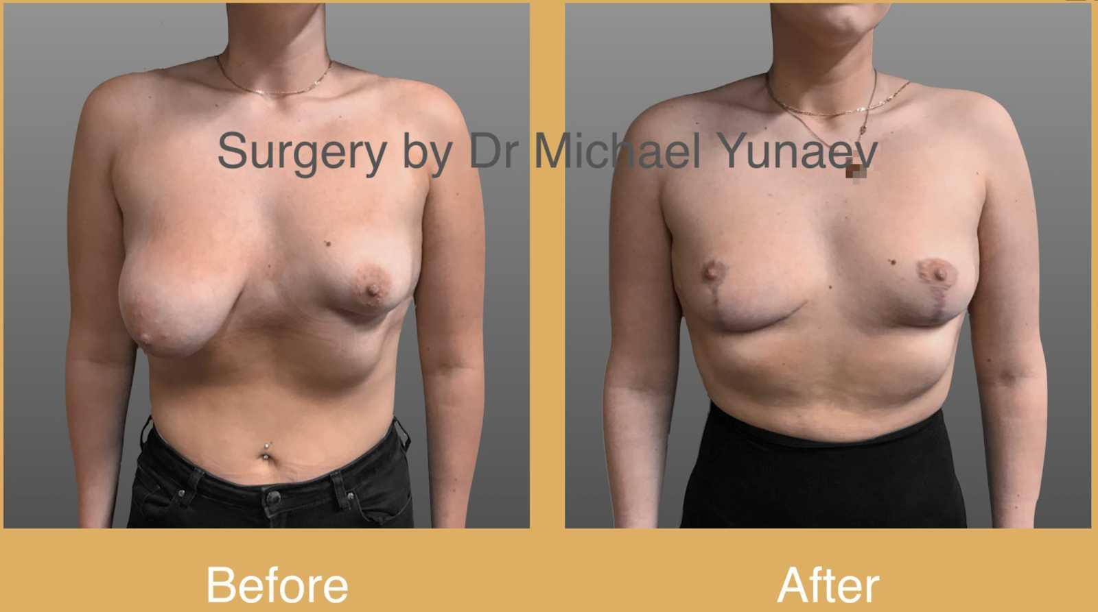 tuberous breast correction Sydney