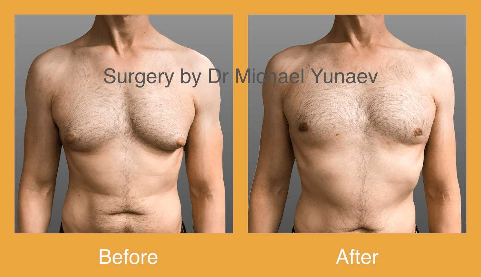 gynaecomastia potts point before and after