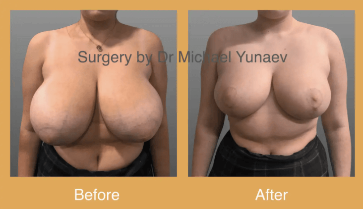 breast reduction canberra