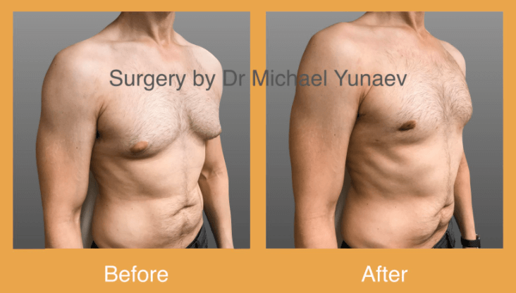 male breast reduction canberra
