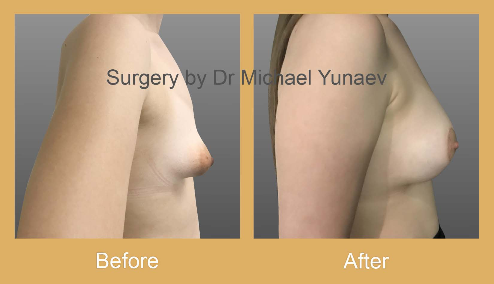 breast asymmetry and tuberous breast before and after sydney