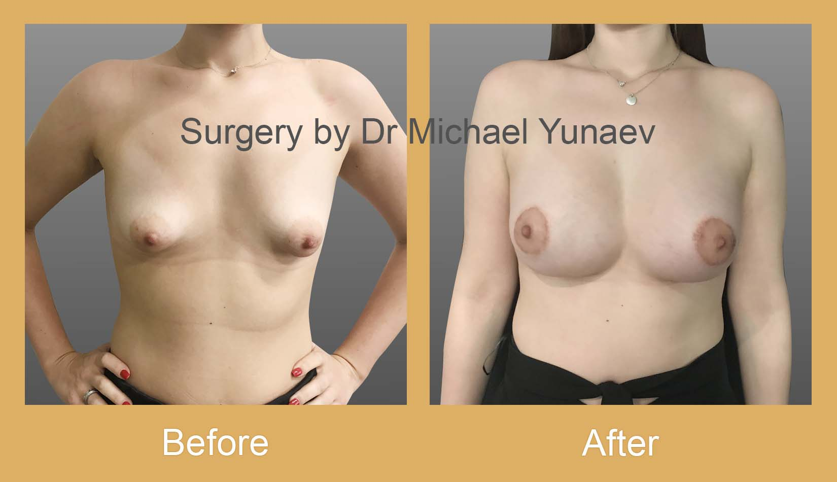 breast asymmetry and tuberous breast before and after