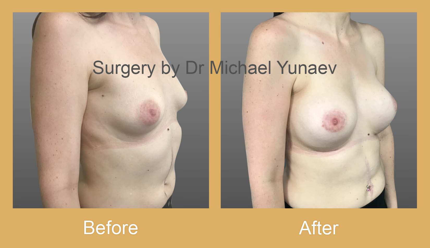 breast asymmetry and tuberous breast bowral