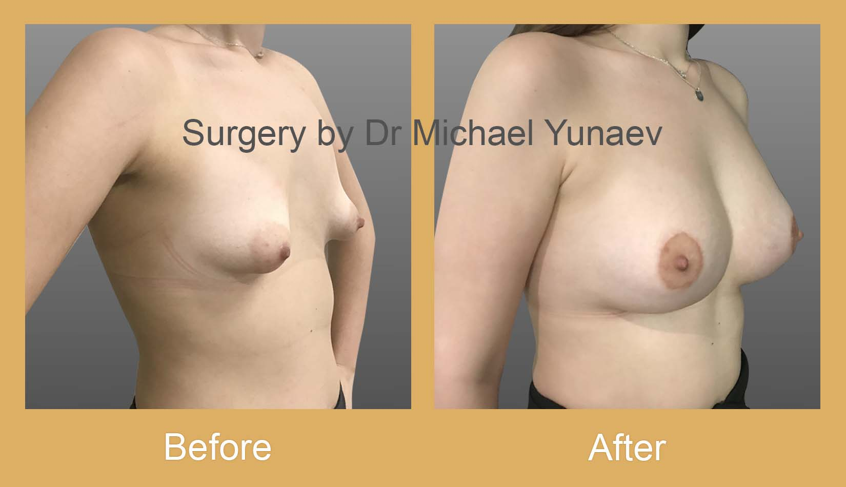 breast asymmetry and tuberous breast cost sydney