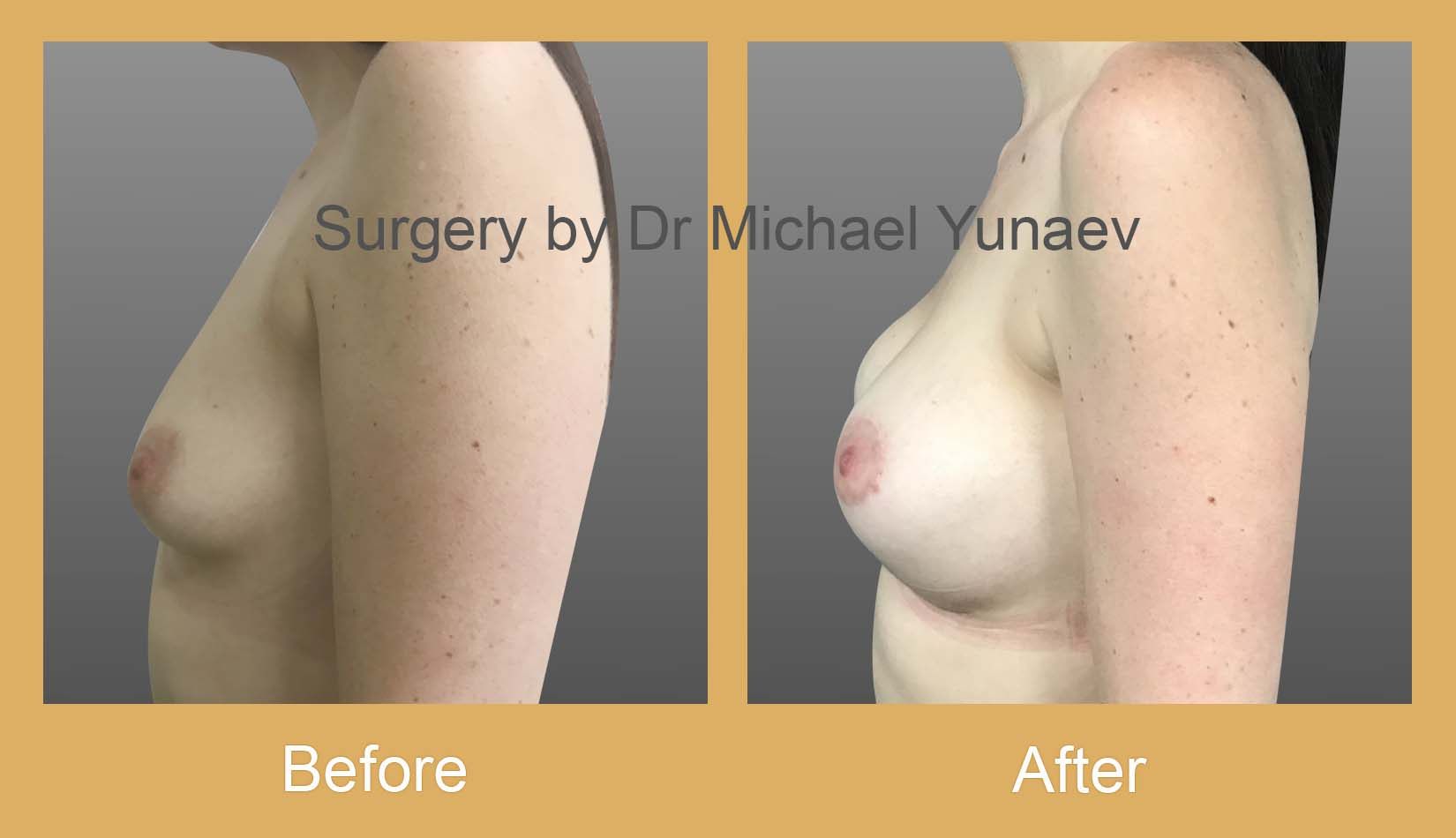 breast asymmetry and tuberous breast potts point