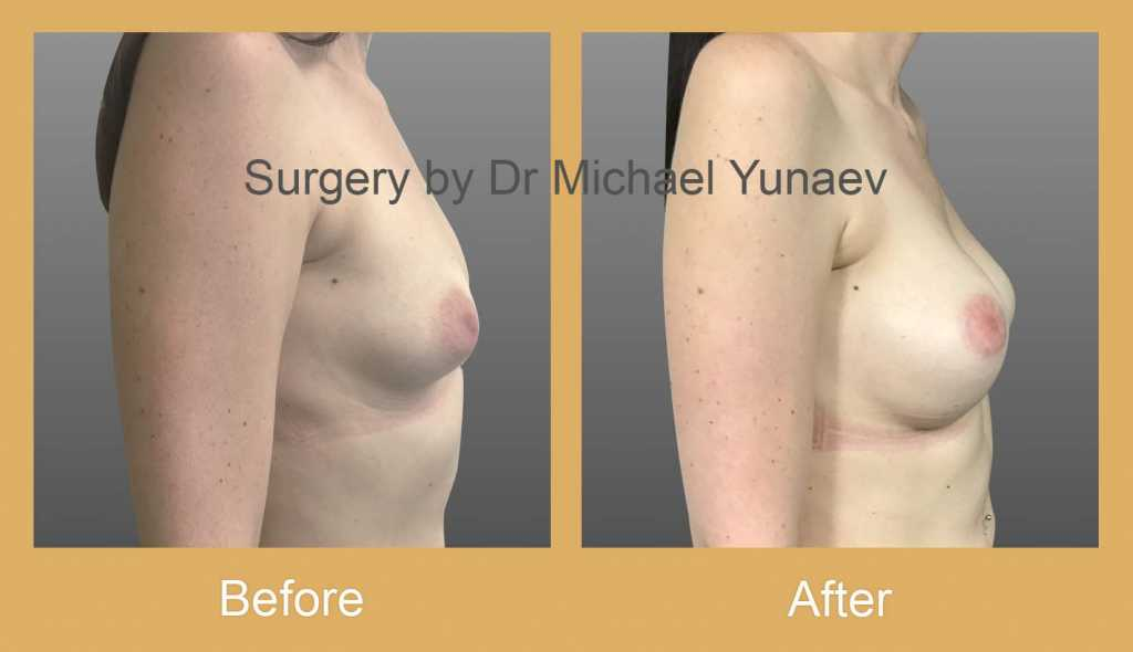breast asymmetry and tuberous breast rozelle