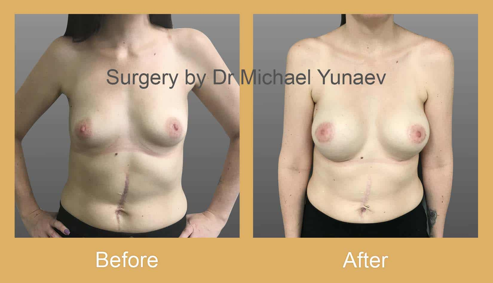 breast asymmetry and tuberous breast sydney