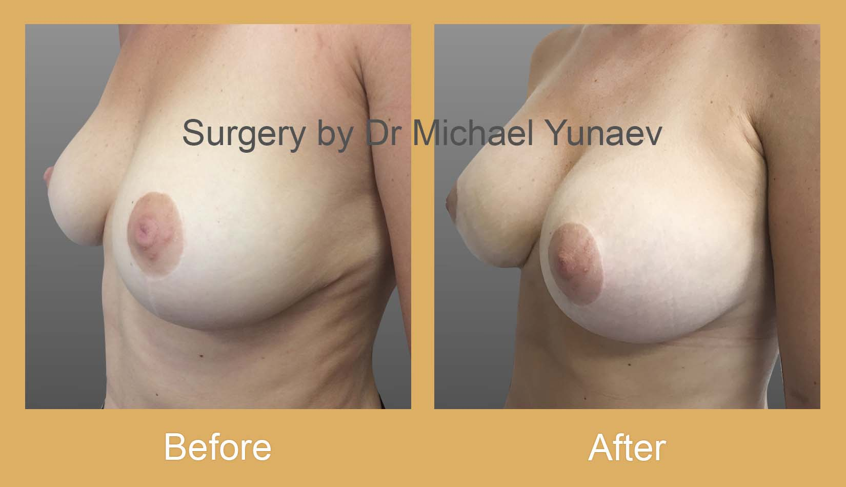 breast augmentation bowral
