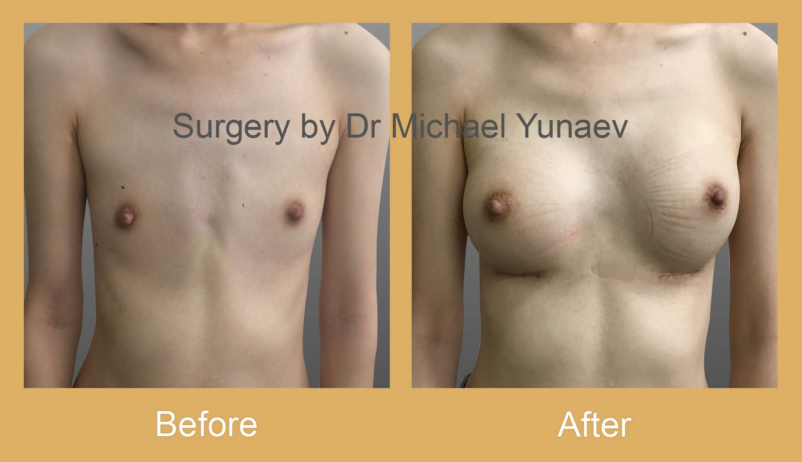 breast augmentation surgery bowral