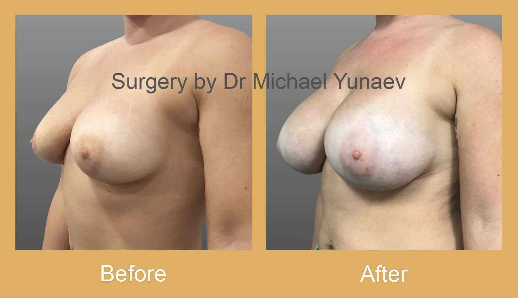 breast implant revision bowral