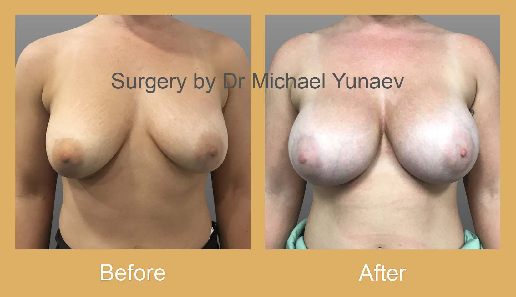 breast implant revision camperdown