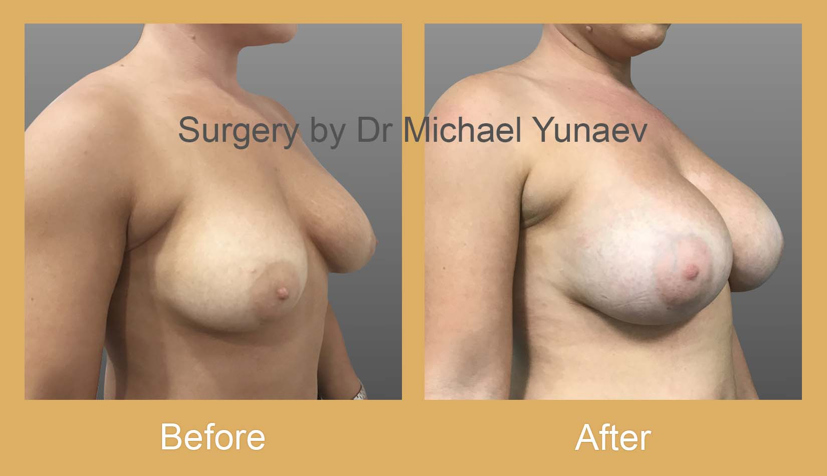 breast implant revision potts point