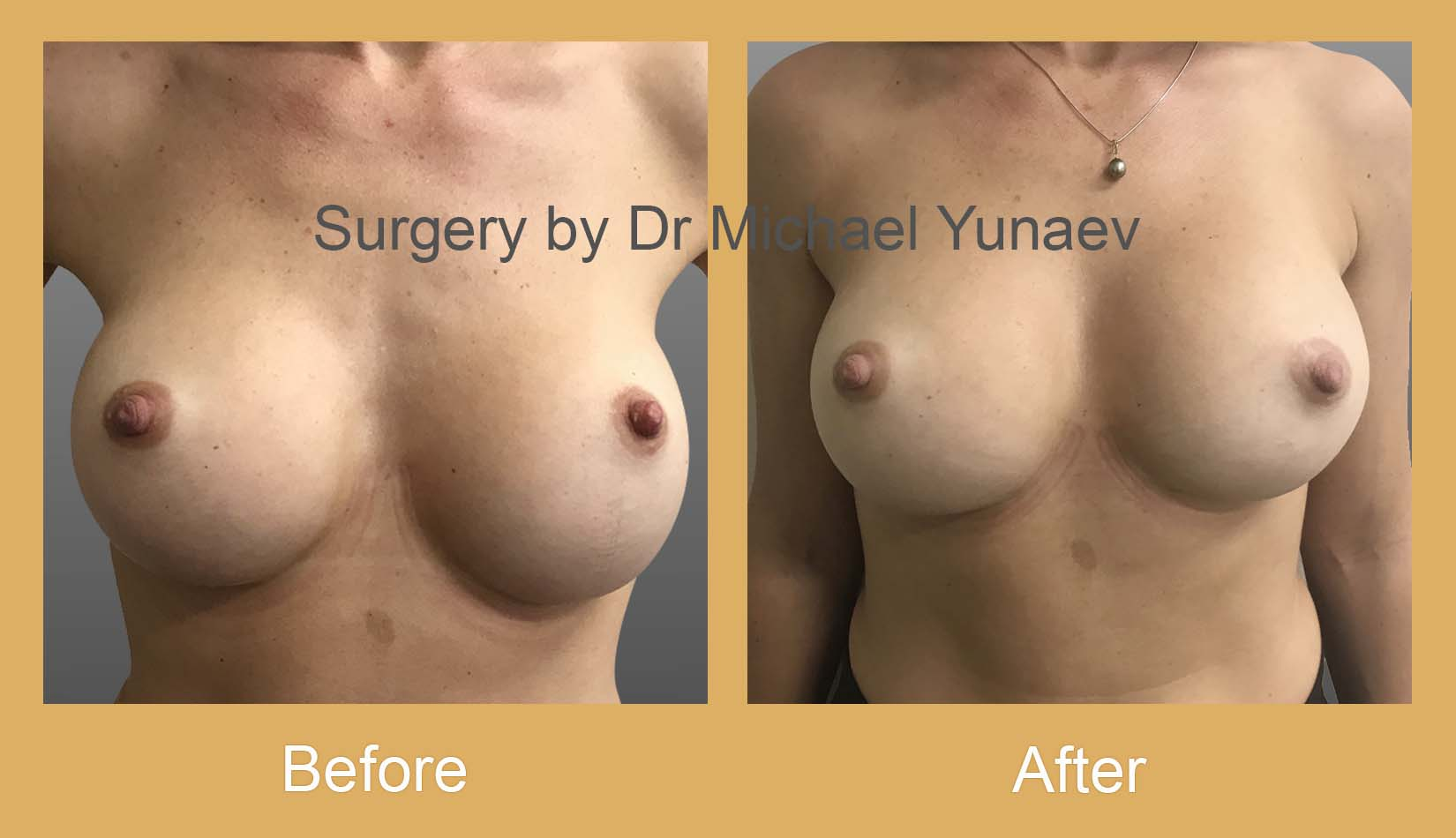 breast implant revision surgery bowral