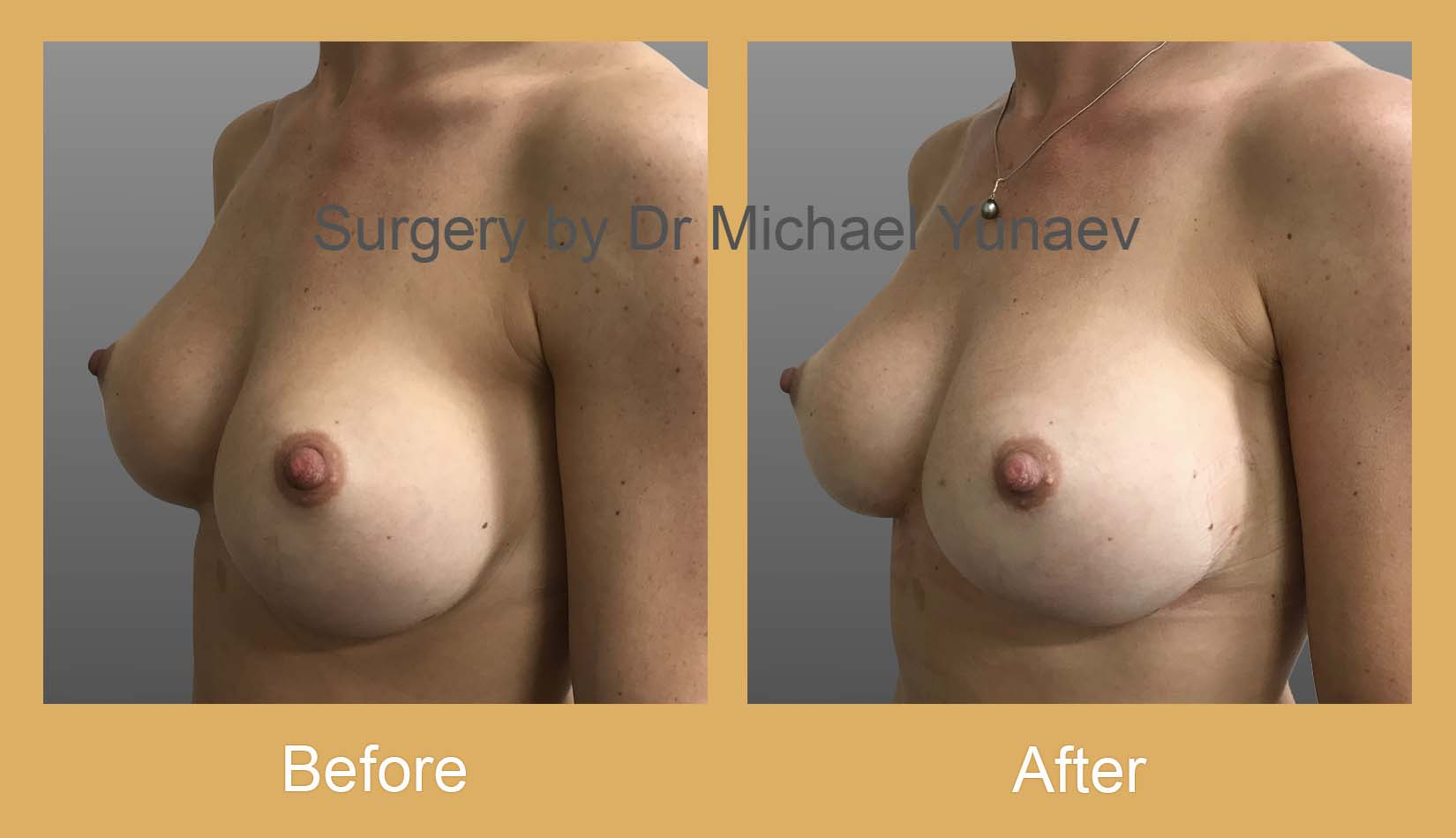 breast implant revision surgery camperdown