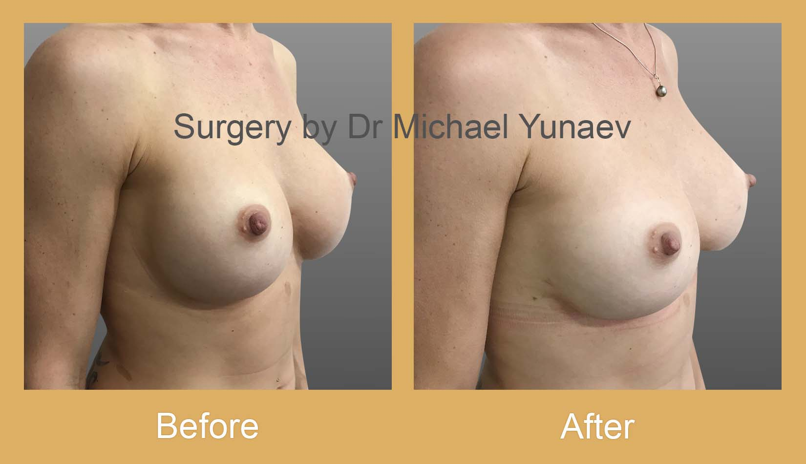 breast implant revision surgery potts point
