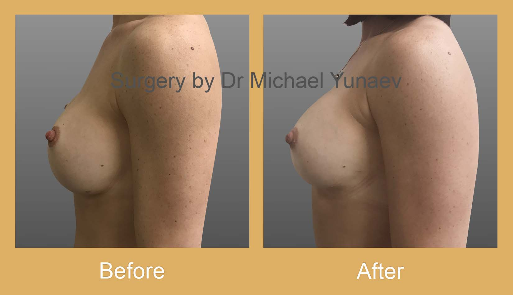 breast implant revision surgery rozelle