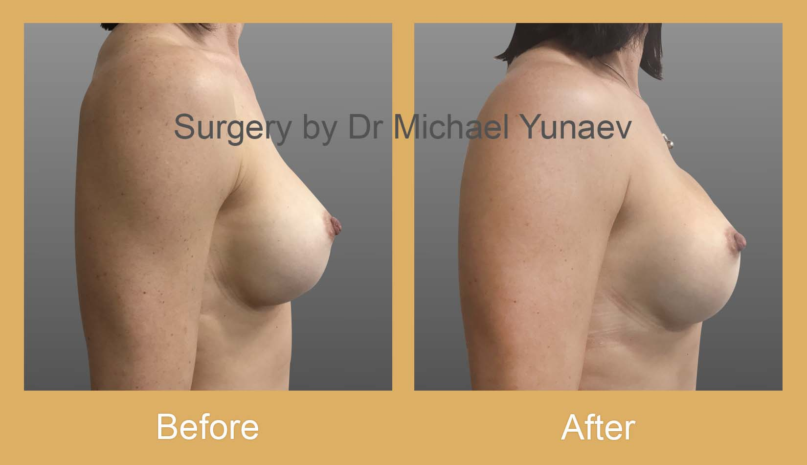 breast implant revision surgery sydney
