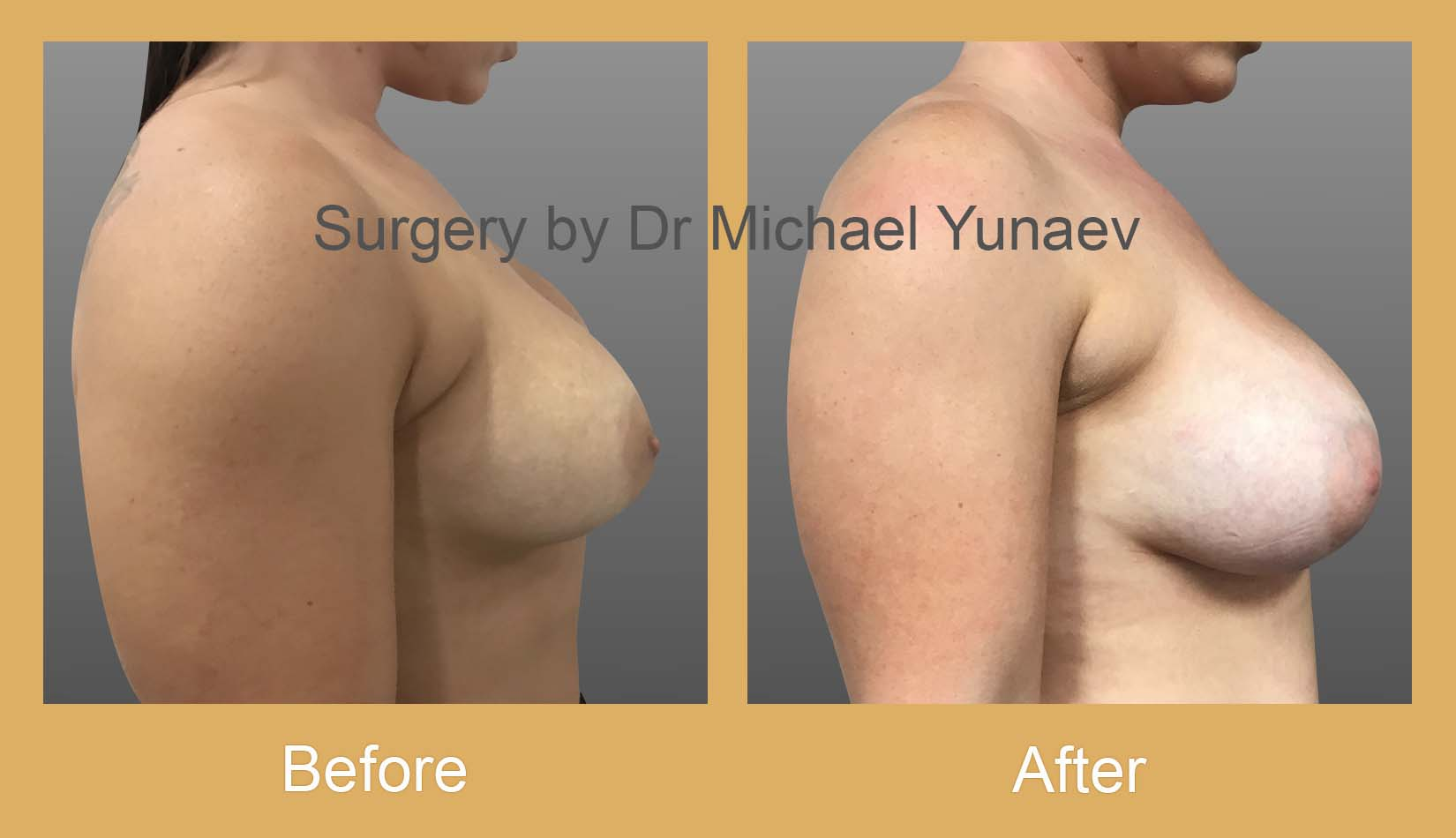 breast implant revision sydney