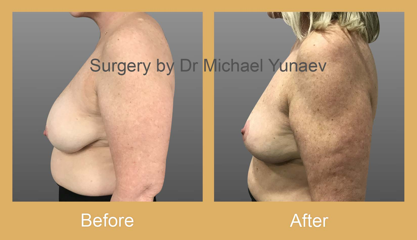 breast lift surgery camperdown