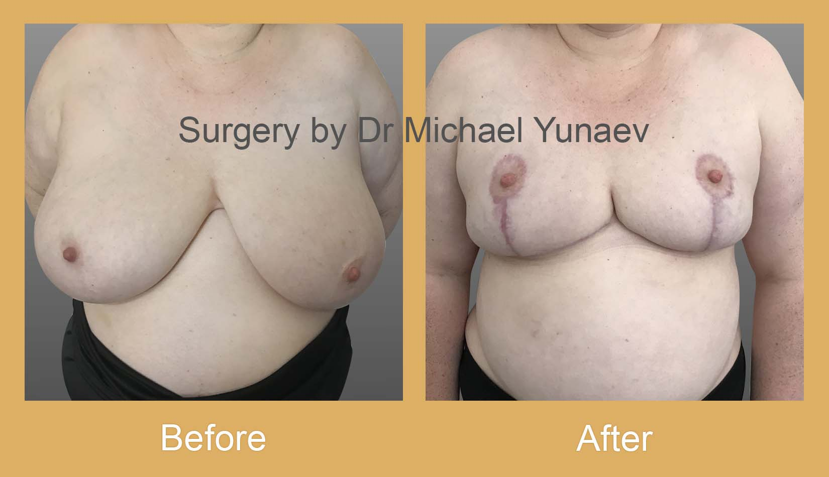 breast reduction potts point