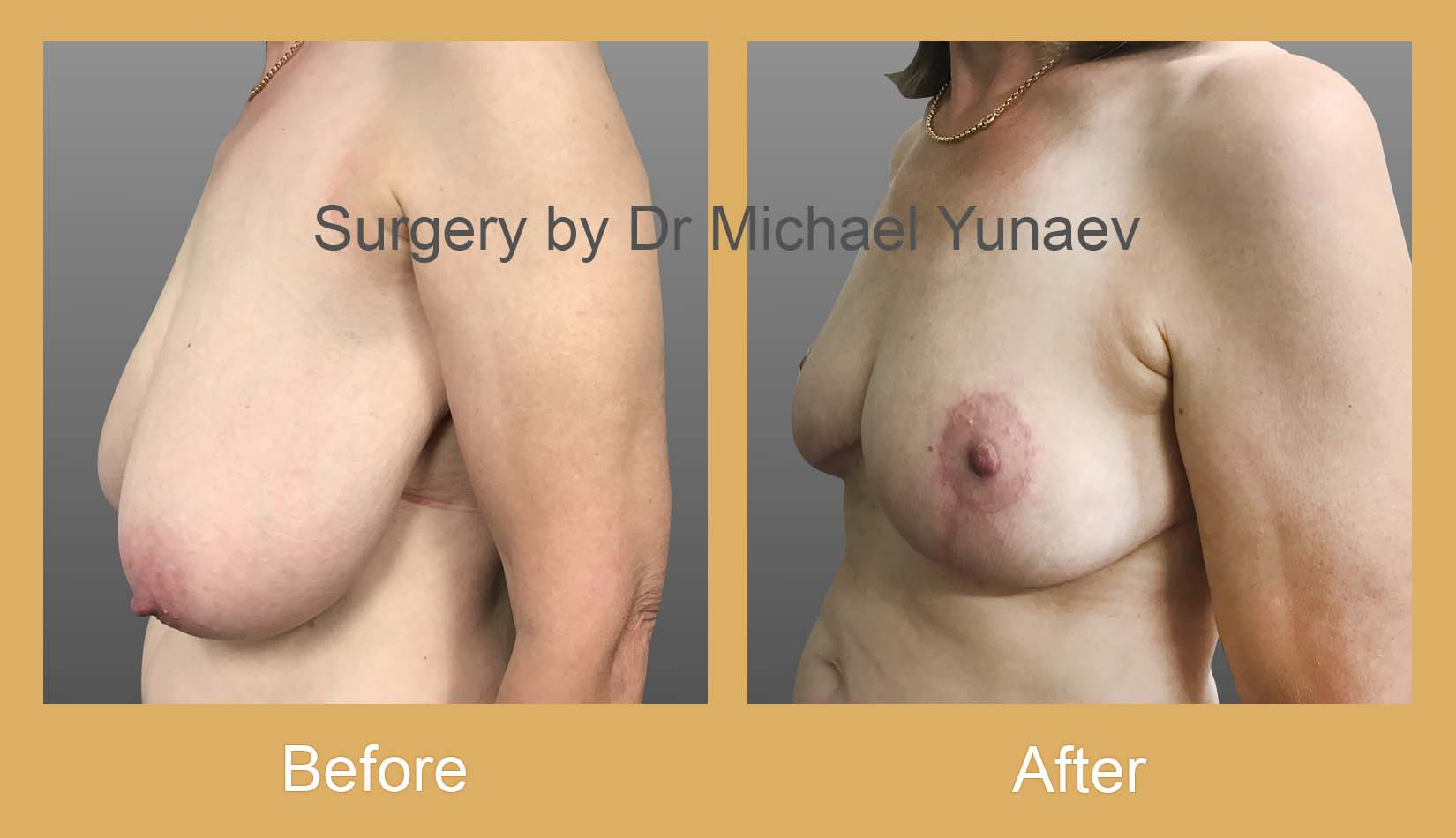 breast reduction rozelle