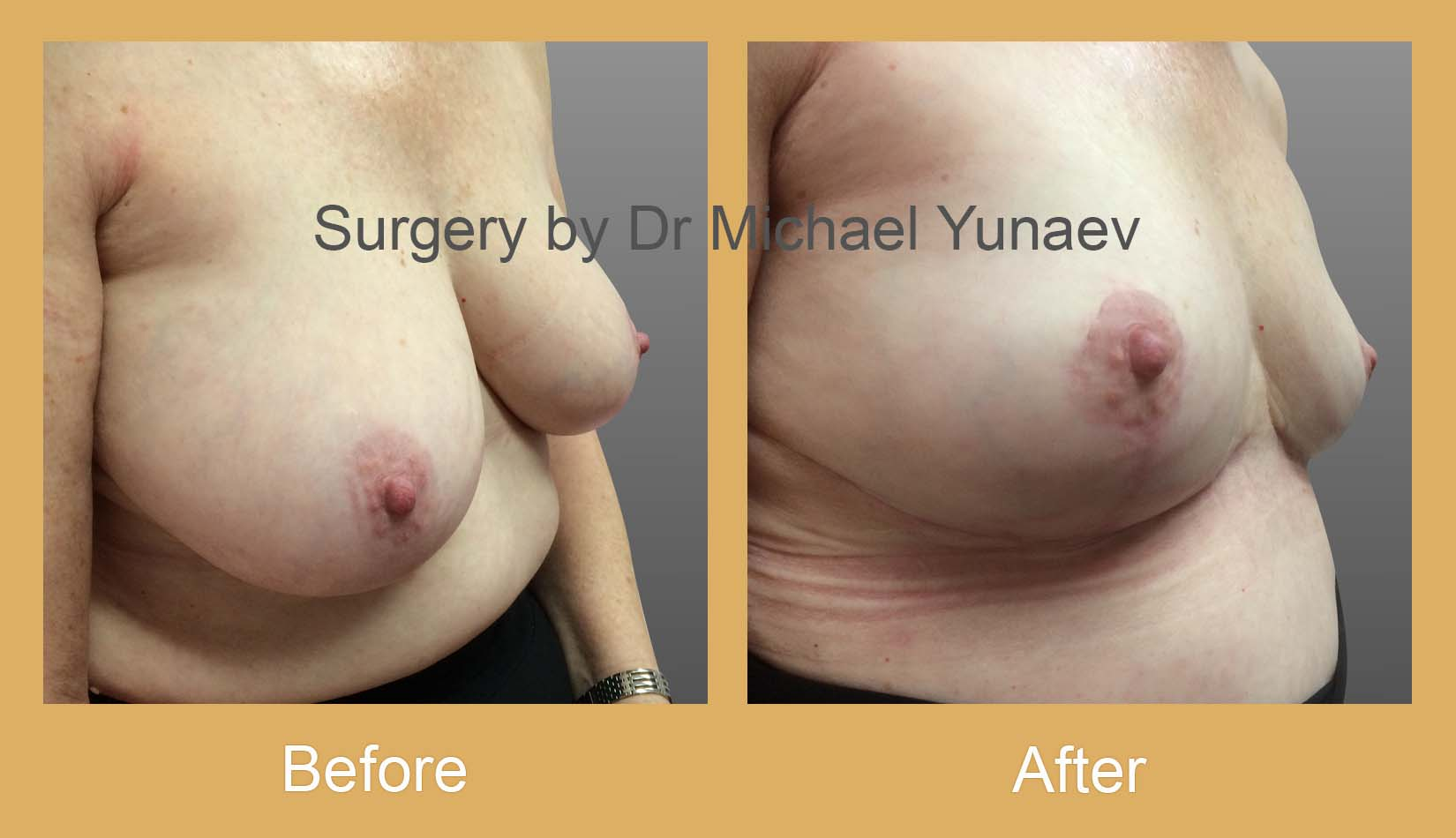 breast reduction surgery camperdown